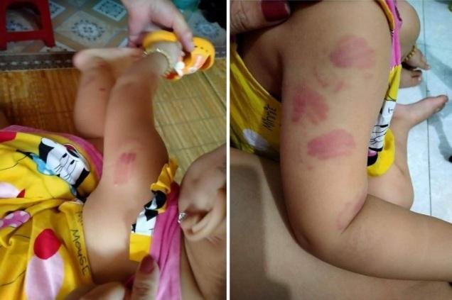 Điều chuyển cô giáo để bé 21 tháng bị cắn tím người