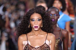 14 người mẫu có vẻ đẹp độc lạ làm thay đổi thế giới thời trang