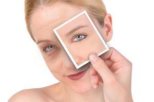 7 bước chăm sóc vùng da quanh mắt