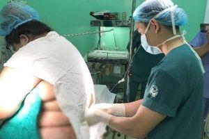 Bác sĩ căng thẳng giúp thai phụ nặng 152 kg sinh con ở Quảng Ninh