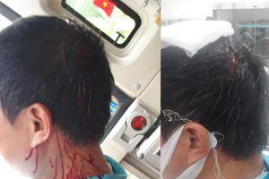 Vụ phụ xe khách bị đánh toác đầu:Công an 'mời' làm việc 3 đối tượng