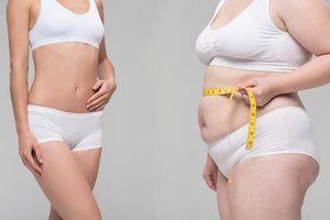 Làm phẫu thuật này, người phụ nữ béo phì giảm được 5kg sau một tuần