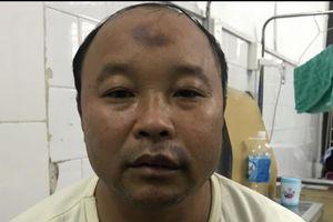 Giao Thủy (Nam Định): Côn đồ lộng hành giữa ban ngày, một người dân nhập viện
