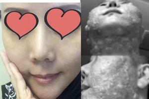 Người phụ nữ bị bỏng rộp cả khuôn mặt khi thực hiện công nghệ trẻ hóa căng da