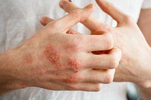 Những yếu tố nào làm tăng nguy cơ bị bệnh nấm da?