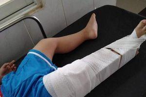 Cô giáo ở Đồng Nai làm gãy chân trẻ mầm non 3 tuổi
