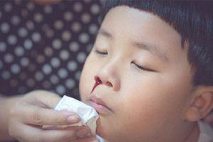 Cậu bé 2 tuổi chảy máu cam, người mẹ sai lầm trong cách sơ cứu khiến con trai tử vong ngay lập tức