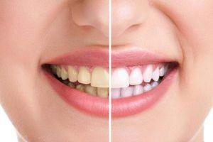 Nguyên nhân của răng ố vàng