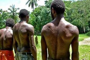 Bộ lạc bắt bé trai phải rạch da, bôi dầu và đất sét để giống… cá sấu
