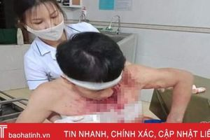 Nhóm đối tượng xông vào nhà đánh gia chủ trọng thương ở Hương Khê