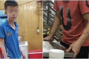 Cục Trẻ em 'vào cuộc' làm rõ vụ bé trai bị chủ quán bánh xèo bạo hành ở Bắc Ninh