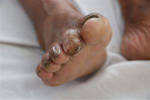 Bệnh Whitmore có biểu hiện lâm sàng đa dạng