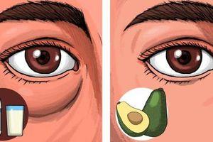 Tránh xa những thực phẩm có thể gây sưng và thâm mắt