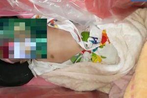 Vụ bé gái còn thở được đưa vào nhà hỏa táng: Gia đình bé đã cố gắng cứu chữa