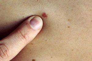 Ngừng ngay những thói quen này nếu bạn không muốn bị ung thư da