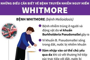 Những điều cần biết về căn bệnh nguy hiểm Whitmore