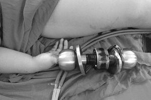 Bé trai 3 tuổi bị kẹt tay vào ổ khóa: Bác sĩ mách cách 'giải cứu'