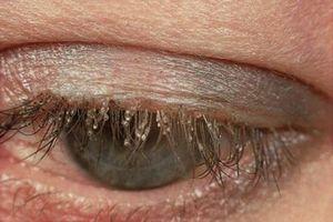 Hốt hoảng khi phát hiện tổ rận gồm 20 con trong mắt