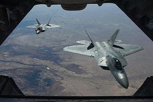 Radar Nga hóa giải công nghệ tàng hình Mỹ như thế nào?