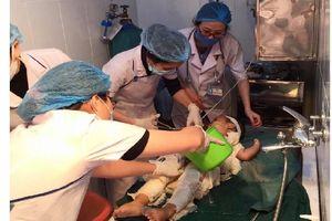 Dùng nước mắm và rượu chữa bỏng, một bé trai bị nhiễm trùng nặng