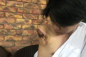 Nghệ An: Nam sinh mất hẳn một cánh tay khi học thực hành tại trường nghề