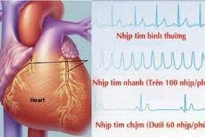 Rủi ro tiềm ẩn khi dùng thuốc chống rối loạn nhịp tim