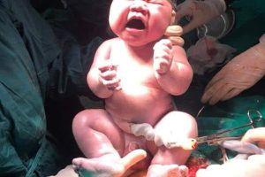 Em bé gần 6kg chào đời tại bệnh viện tuyến đầu chống dịch