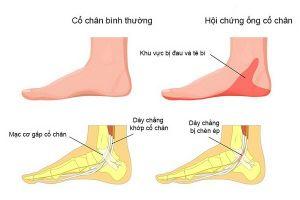 Chớ chủ quan với hội chứng đường hầm cổ chân