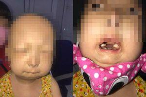 Chuyện lạ: Bé gái 6 tuổi bị lão hóa nhiều bộ phận như người già