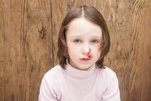 Mẹo ngừa chảy máu cam mùa lạnh cho trẻ
