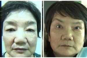 Bị chồng đuổi khỏi nhà vì chi gần 1 tỷ đồng để 'làm hỏng khuôn mặt'