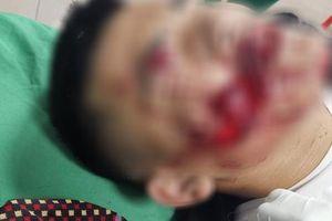 Nghịch pháo, 2 chú cháu bị pháo nổ dập nát bàn tay, bị thương vùng mặt