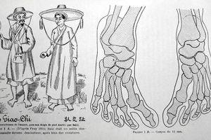 Sự thật về 'bàn chân Giao Chỉ' của người Việt cổ