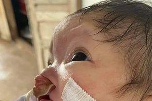 Em bé nhiều khiếm khuyết