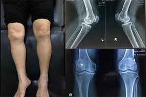 Cảnh giác với những quảng cáo điều trị dứt điểm thoái hóa xương khớp