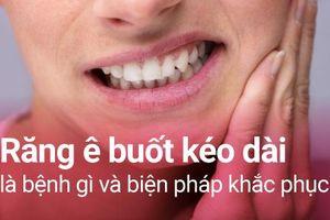 Tuyệt đối không được chủ quan khi răng ê buốt kéo dài