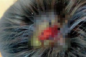 Bé 9 tuổi bị cha đánh: Bi kịch gia đình tan vỡ