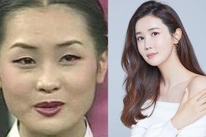 Ám ảnh ngoại hình đẩy nghệ sĩ nữ châu Á vào cuộc đua 'dao kéo'
