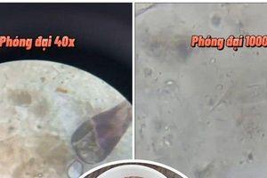 Clip: Choáng váng khi nhìn cận cảnh vi khuẩn lúc nhúc trong mắm tôm