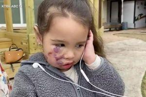 Bé gái 3 tuổi khóc nức nở 'Con thật xấu xí' sau khi bị chó pit bull tấn công kinh hoàng