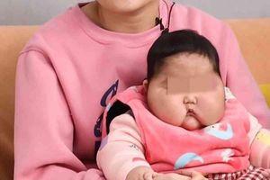 Bé gái tại Trung Quốc phát triển bất thường sau khi dùng kem dưỡng da
