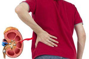 5 dấu hiệu cảnh báo bệnh sỏi thận
