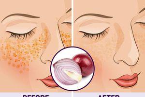 10 mẹo vặt giúp chữa nám da tại nhà hiệu quả