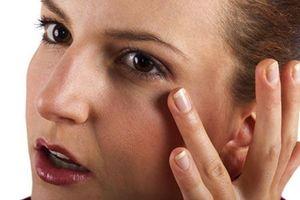 3 cách chữa 'mắt gấu trúc'