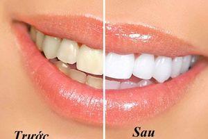 Mẹo nhỏ giúp bạn loại bỏ vết ố vàng trên răng