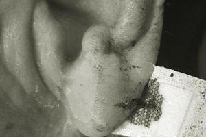 Cứa tai, chích máu tay chữa đột quỵ: Phương pháp chữa bệnh mù quáng