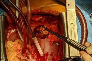 Bệnh nhân mắc u tim kèm hở van động mạch chủ