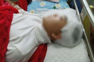 Thanh Hóa: Nam sinh lớp 11 bị bạn đánh chấn thương sọ não
