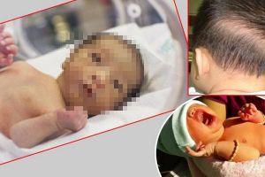 Còi xương ở trẻ em: Những điều cần biết