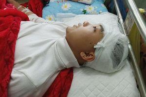 Sở Giáo dục Thanh Hóa yêu cầu làm rõ vụ học sinh bị đánh vỡ sọ não